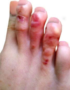 Summary of Athletes-foot
