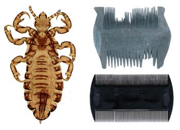 Do's and Don'ts of Head Lice