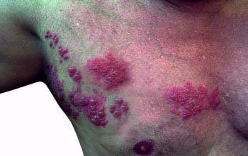 Shingles (Herpes Zoster) Overview