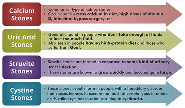 Types of Kidney Stones