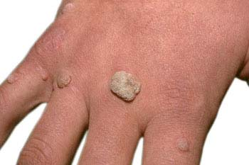 Definition of Warts