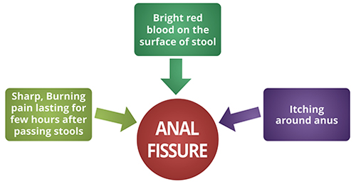 anal fissure symptoms